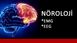 yeni_nöroloji.fw